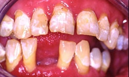 Figure 2: These initial clinical photos illustrate early erosion with etching of the enamel surfaces. Progression to frank caries is seen if the decalcification continues unchecked without the use of daily fluoride.